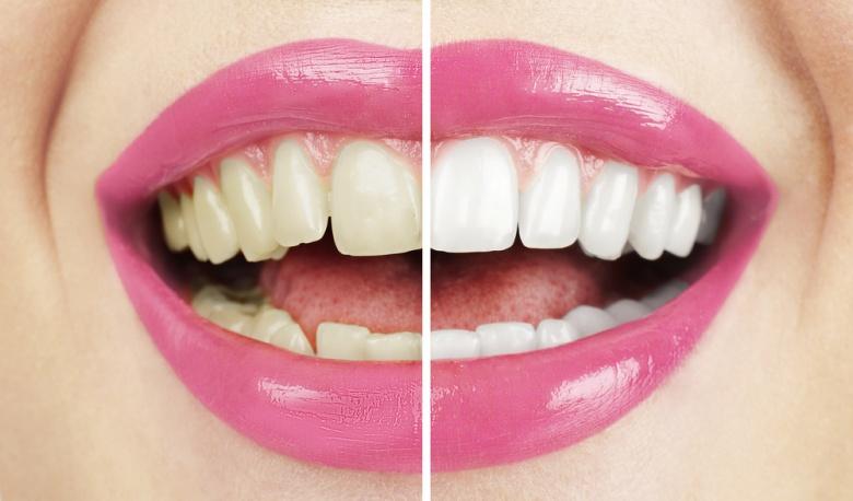 Зубы желтые у корней — Болезни полости рта
