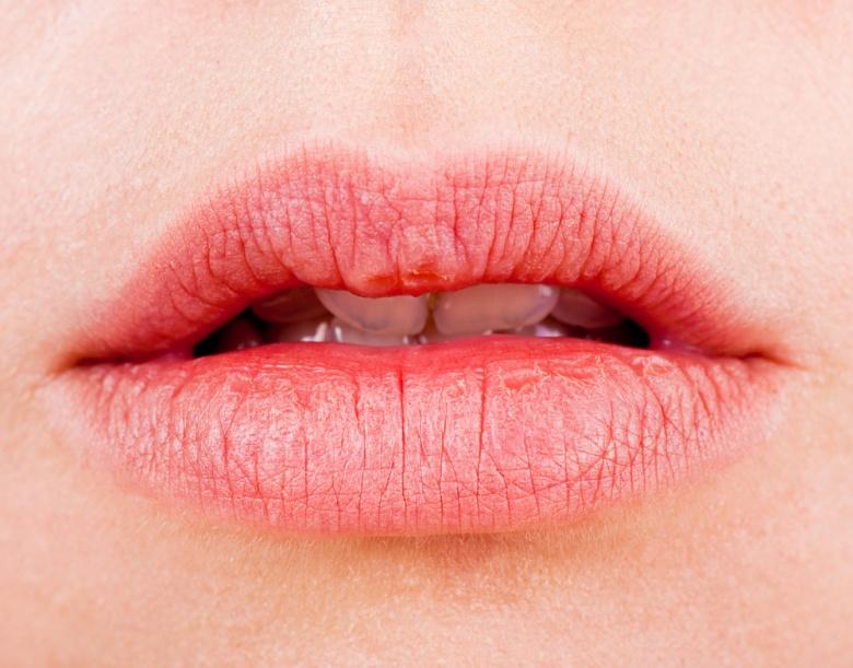 Белые точки и пятна на губах под кожей, в уголках: причины высыпаний и крапинок на губах